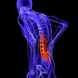 Spinal Injury | Lesiones en la Columna Vertebral