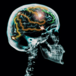 Phoenix Brain Injury Attorney