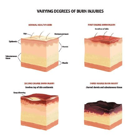 Degrees of Burn Injuries