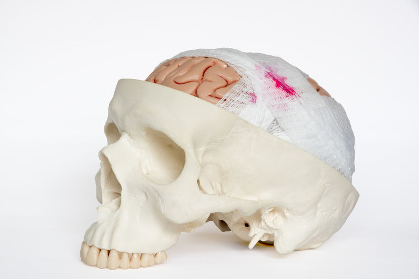 Traumatic brain injury lawyer in New Mexico
